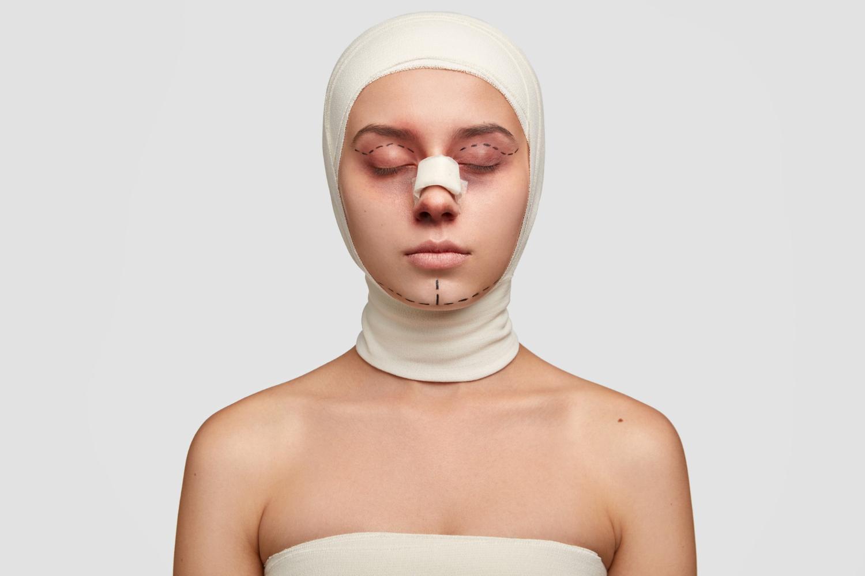Double Eyelids Surgery
